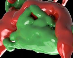Le flux sanguin impacte la localisation des métastases dans le cerveau